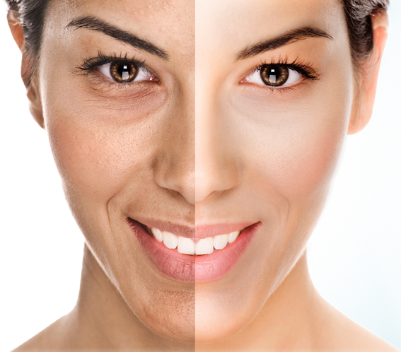 OxyGeneo Facial Before and After