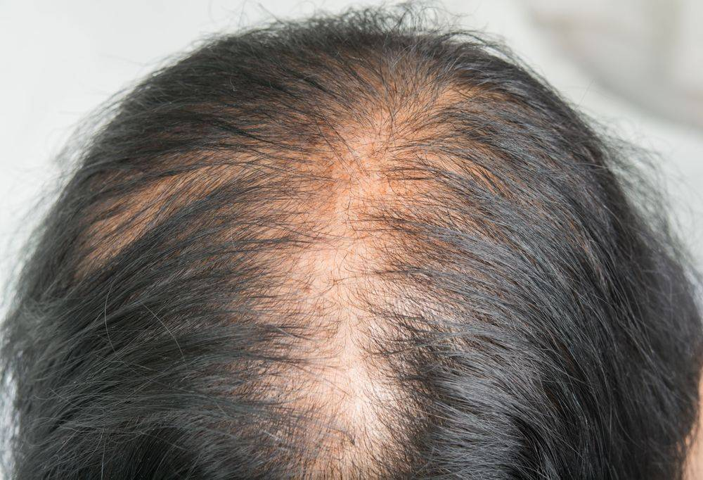 Thinning Hair?  We Can Help!