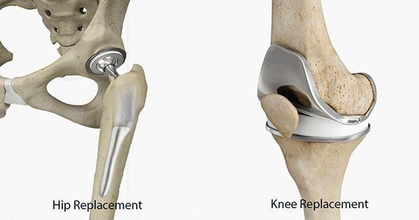 Hip & Knee Replacement Mazatlan Mexico