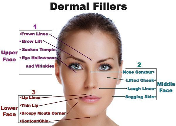 Non-surgical face lift with derma fillers