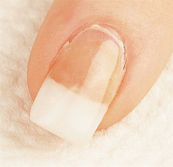 Nail extension lifting at the cuticle