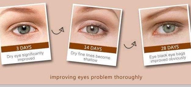 Mesotherapy Eye Bag Kensington