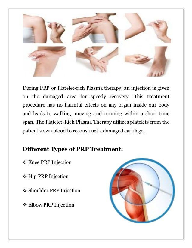 PRP Joint injection