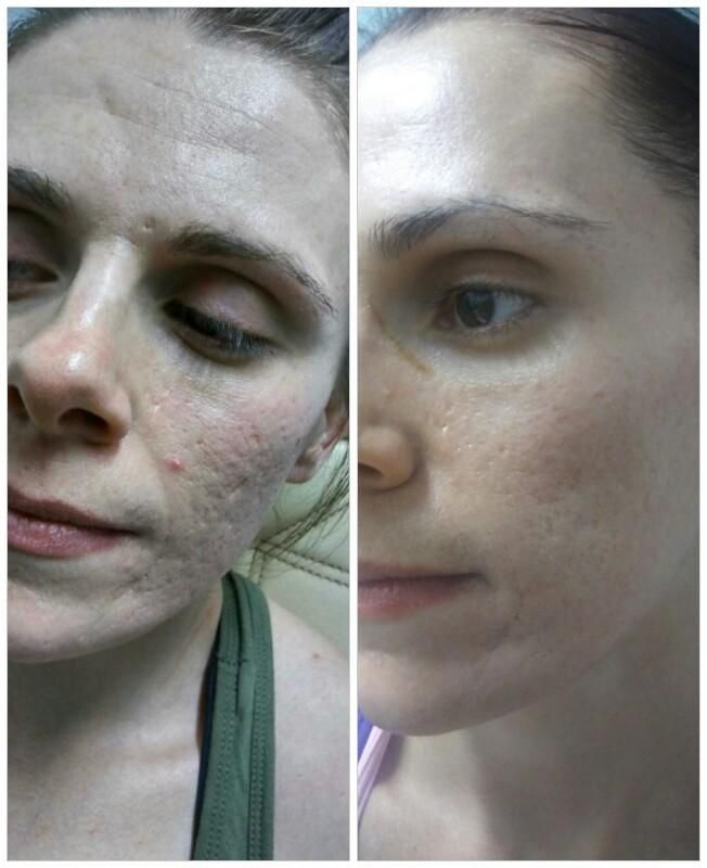ACNE BEFORE TREATING