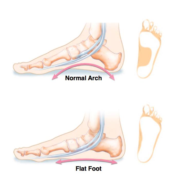 Image of pink compression knee high socks