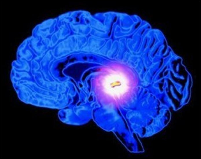 Fluoride causes damage to our Pineal Gland and we are Wise to Avoid it! The Pineal relates to Serotonin and Melatonin.