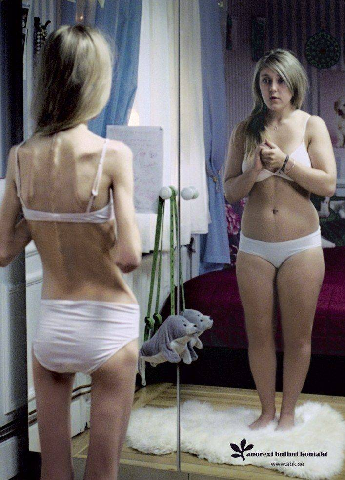 bulimia, anorexia, eating disorder, disorders, naples, florida, hypnotherapy, therapy, hypnosis