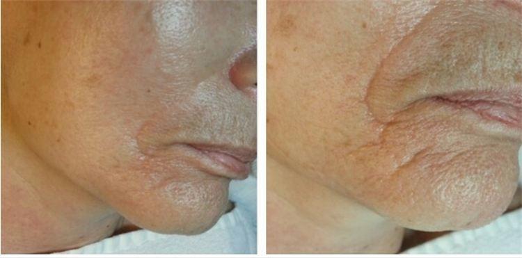 Enhancer pics nasal labial smoother skin