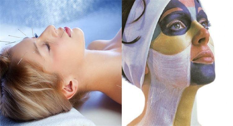 esthetische cosmetische acupunctuur