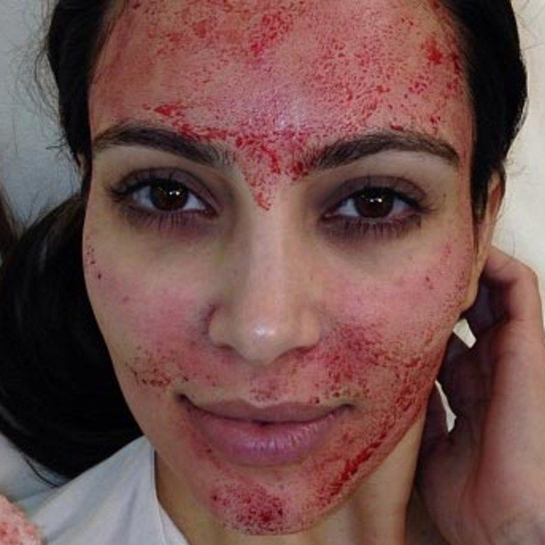 Vampire Facelift, Kim Kardashian, Vampire Facial, Face lift, Micro Needling, MD Pen