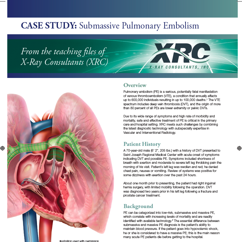 Submassive Pulmonary Embolism