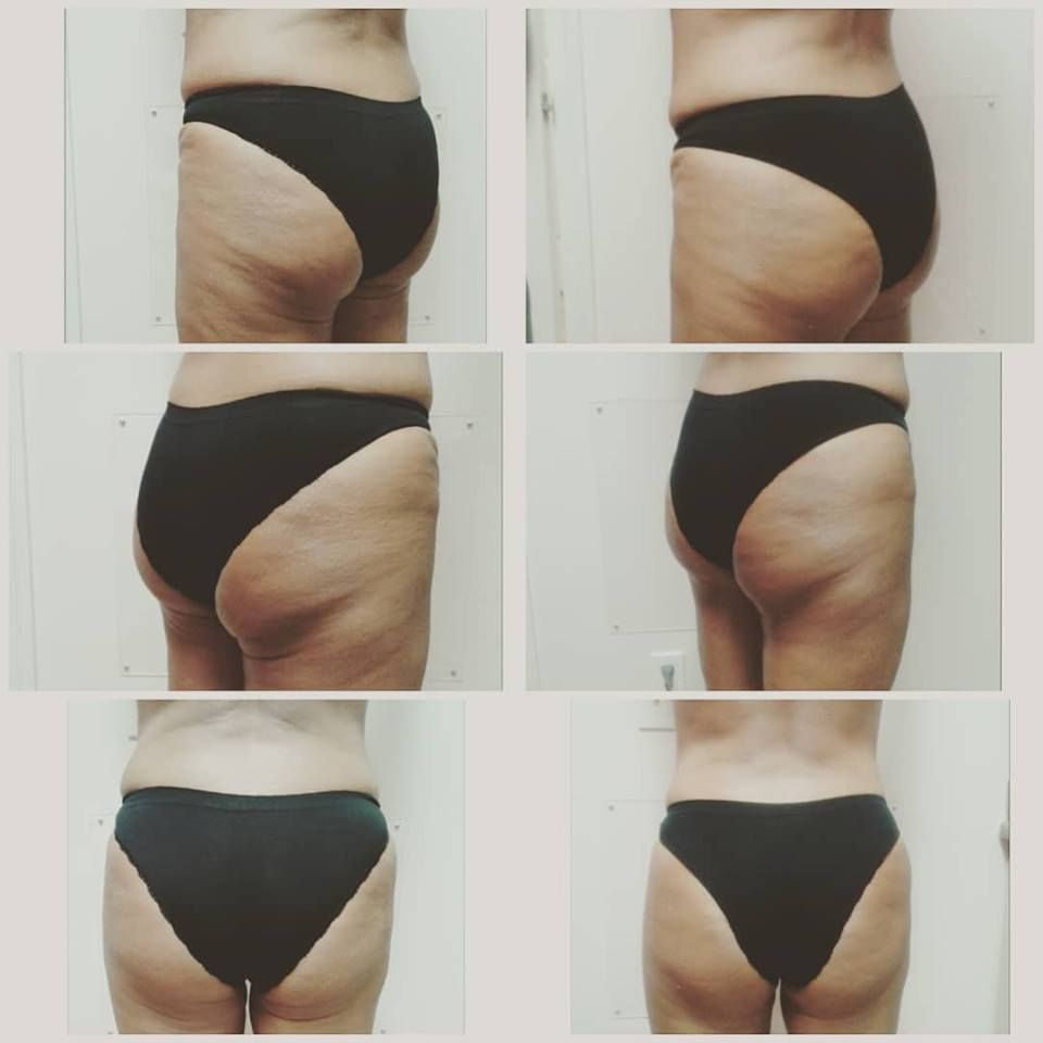 delfin butt lift, butt lift, vacuum therapy, noninvasive treatment, round hips, body contouring