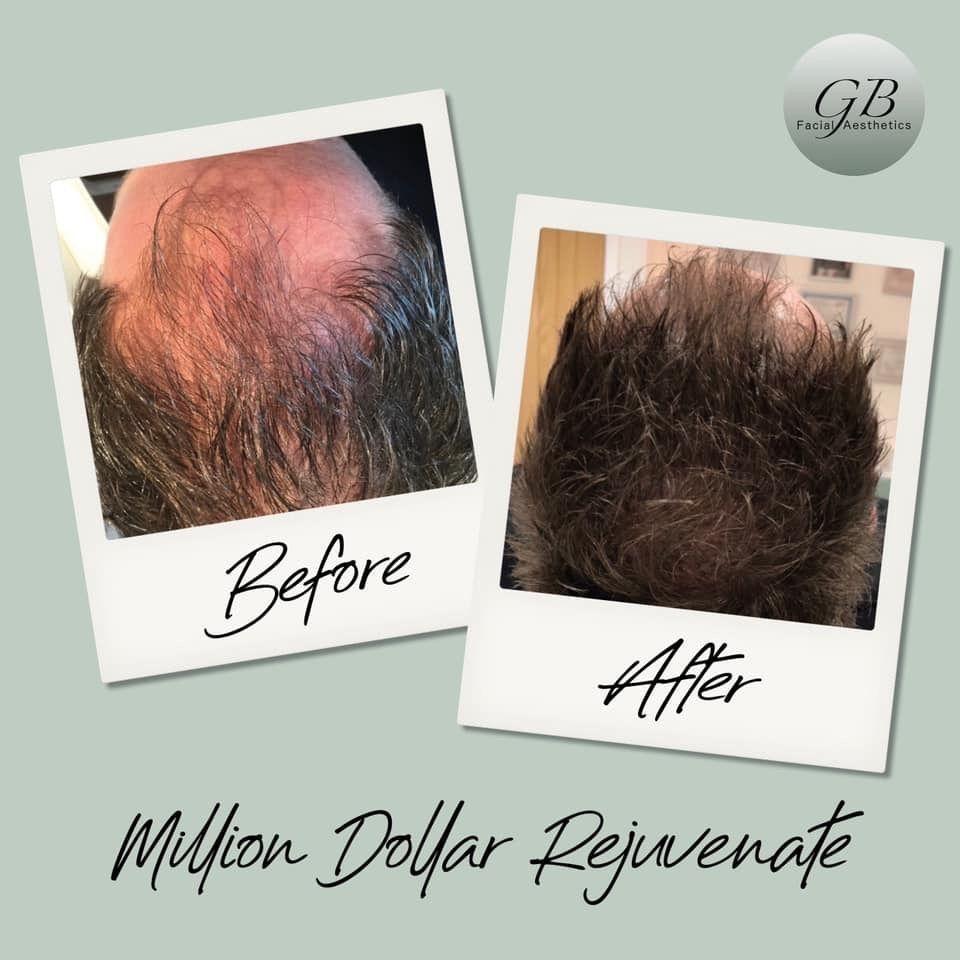 Million Dollar Rejuvenate, hair treatment
