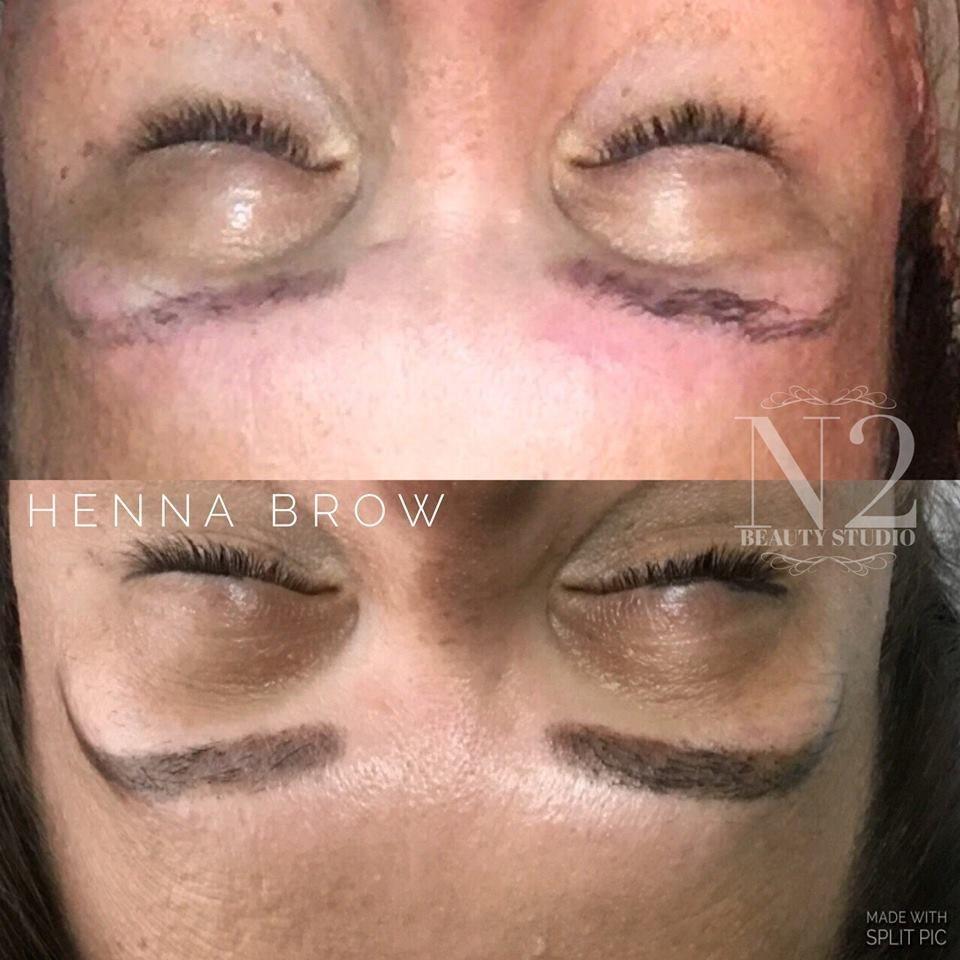 Skin Tightening West Kelowna