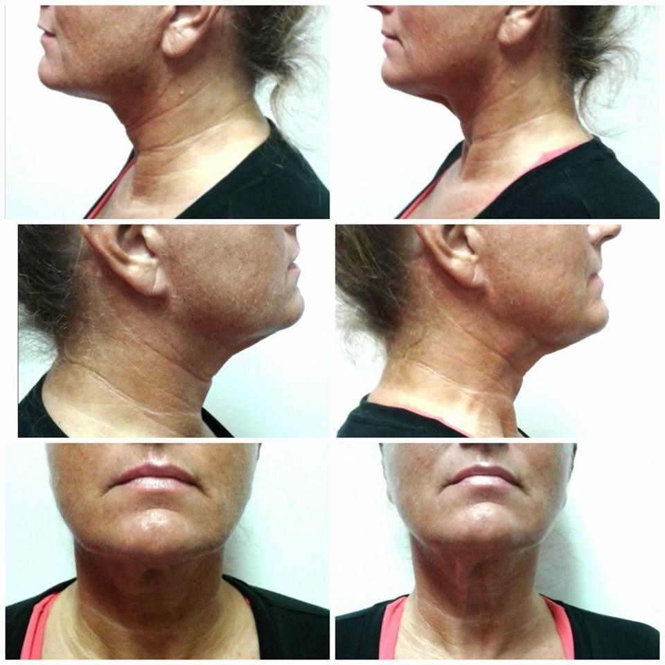 Neck Lift, Vanquish, Face Lift, Noninvasive treatment, Instant Results
