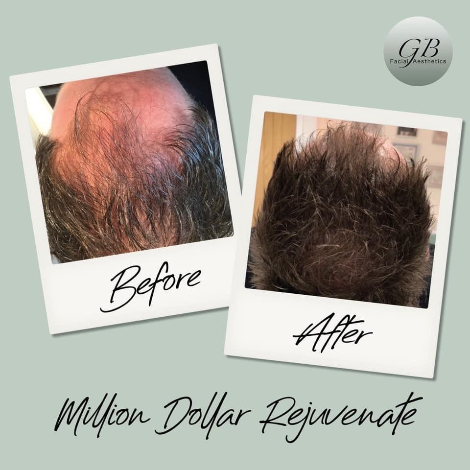 Million Dollar Rejuvenate, hair treatment