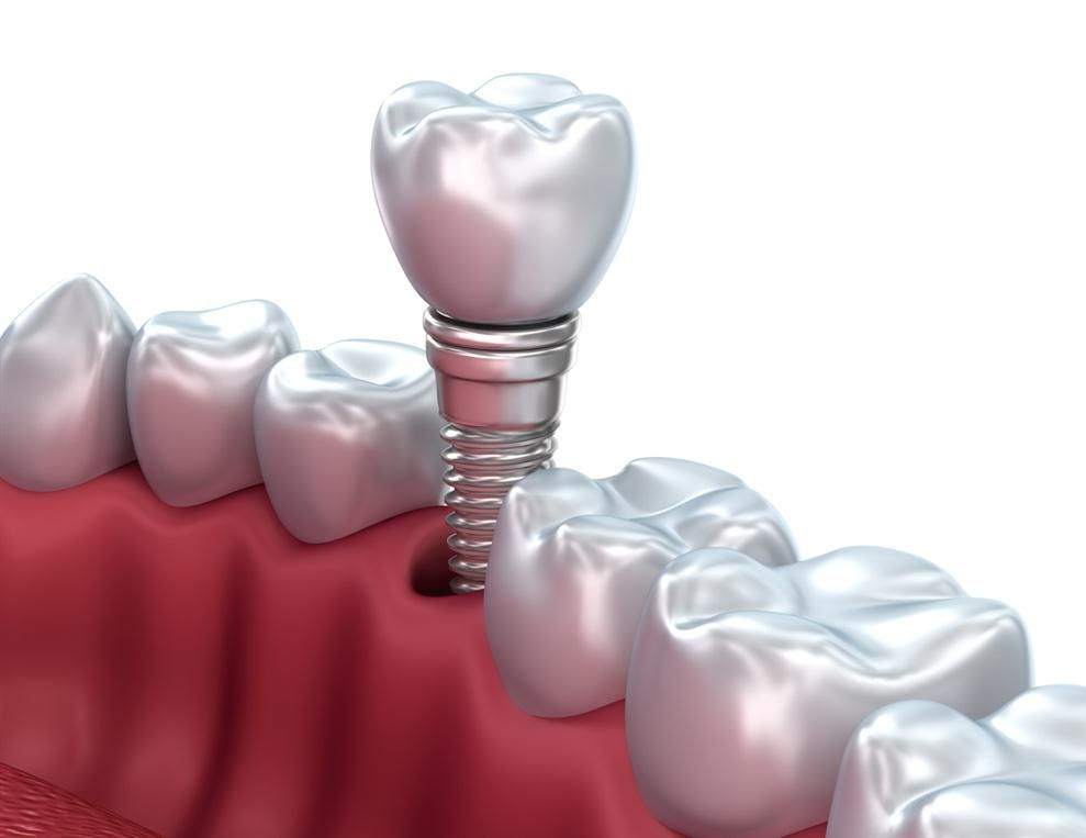 Dental Implants Mazatlan Mexico