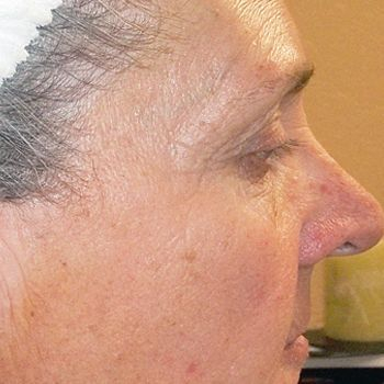 Before Nano Collagen induction therapy