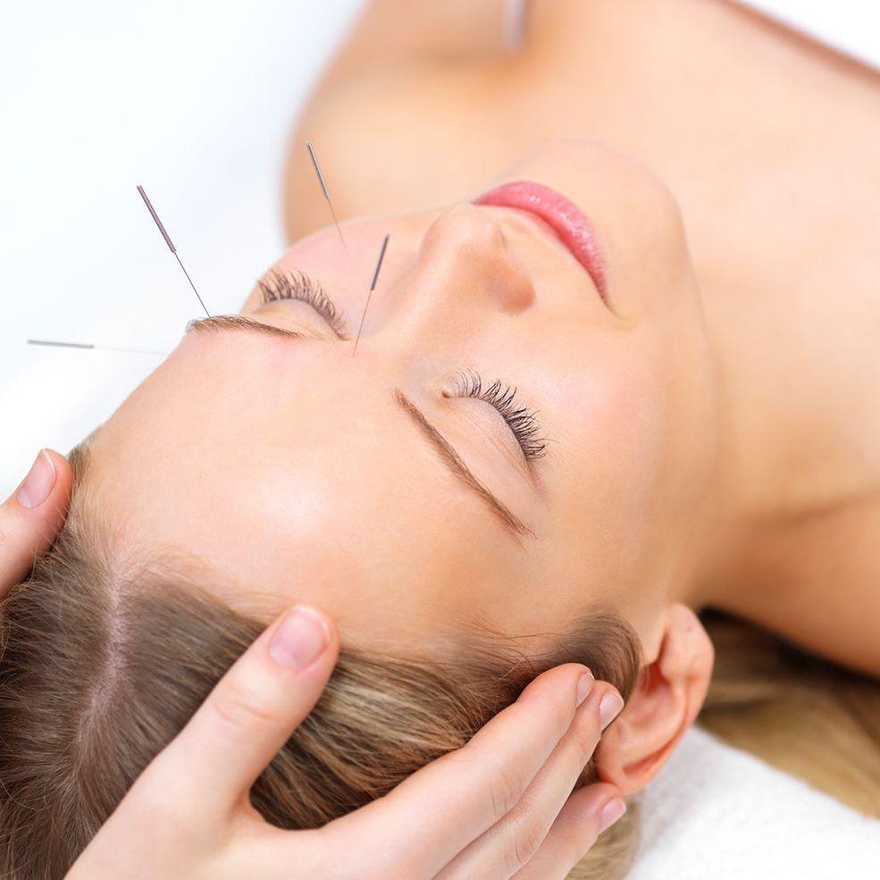 NADA auricular acupuncture