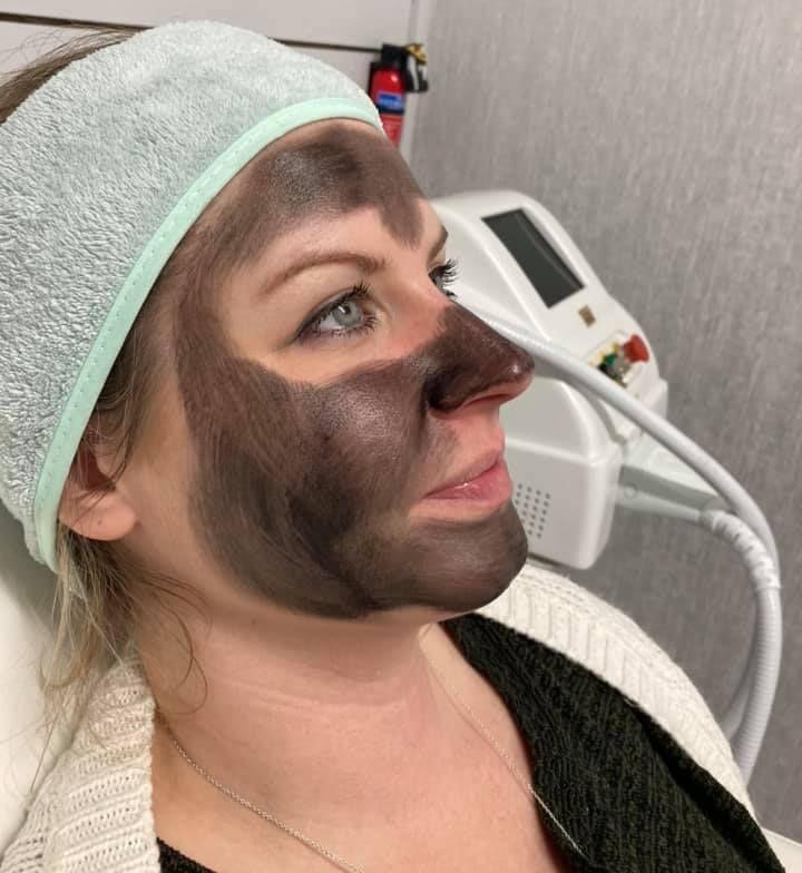 Laser Carbon Facial Nottingham