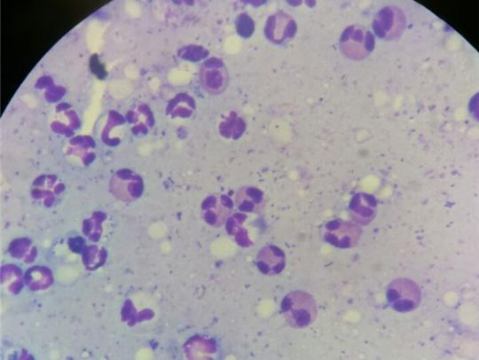 Feline eosinophilic granuloma complex, feline indolent ulcer, eosinophilic ulcer or rodent ulcer. The second is feline eosinophilic plaque and the third is feline eosinophilic granuloma, linear granuloma