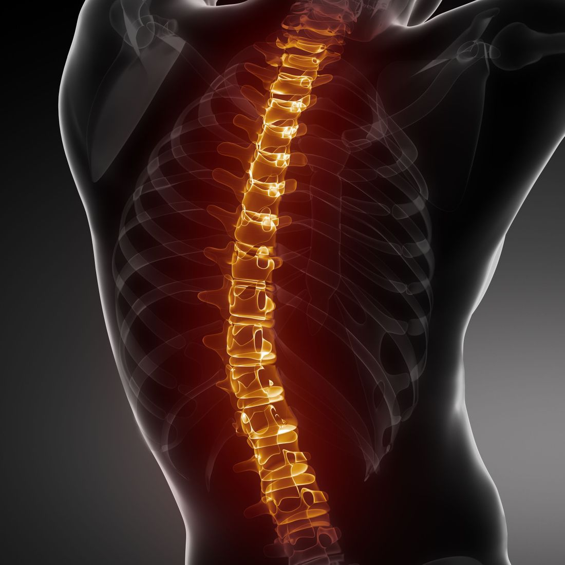 Spinal acupuncture care, back pain, degenerative disc disease
