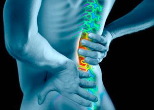 Back Pain Illustrated Diagram