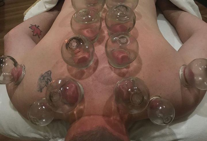 Fort Saskatchewan Cupping BodyTx, Fire cupping