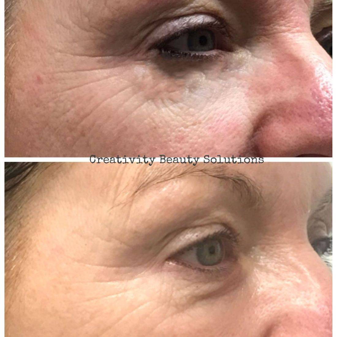 Dermalogica Non-Surgical facelift, skincare , Creativity Beauty Solutions, Reading, Lower Earley