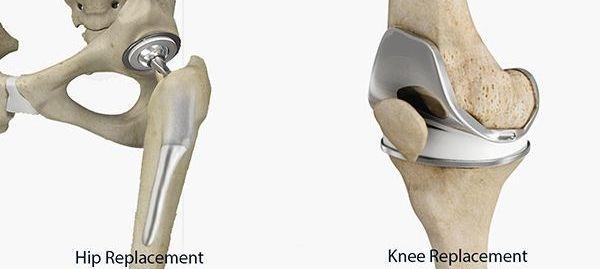 Hip & Knee Surgery Mazatlan