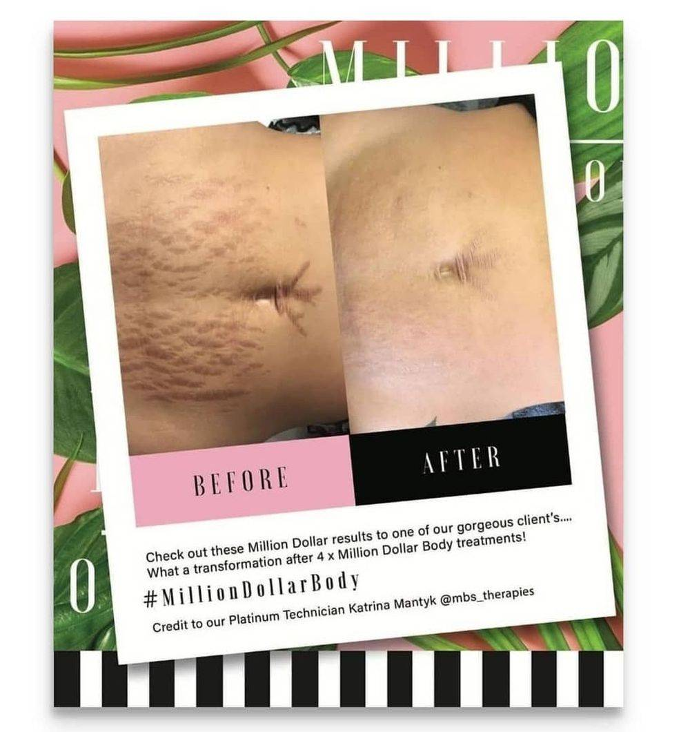 Million Dollar Body, stretch mark treatment, scarring treatment