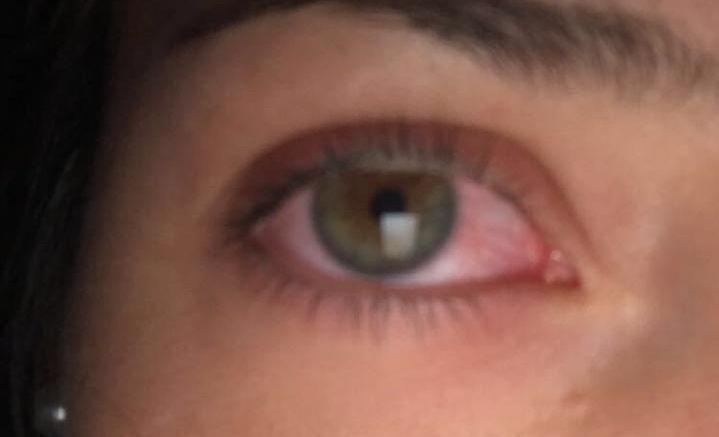 Eye Emergencies Like Pink Eyes