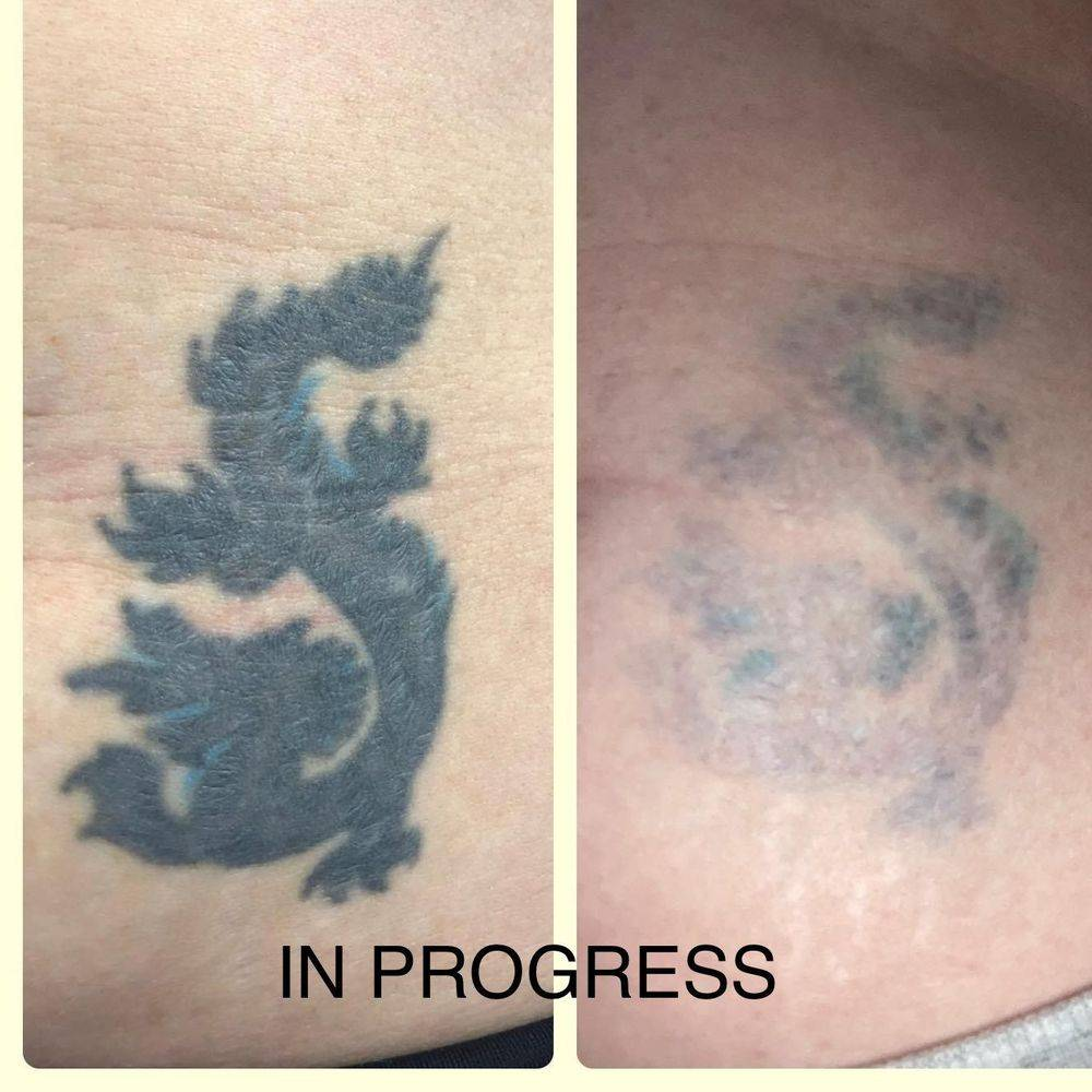 Laser tattoo removal in Mansfield