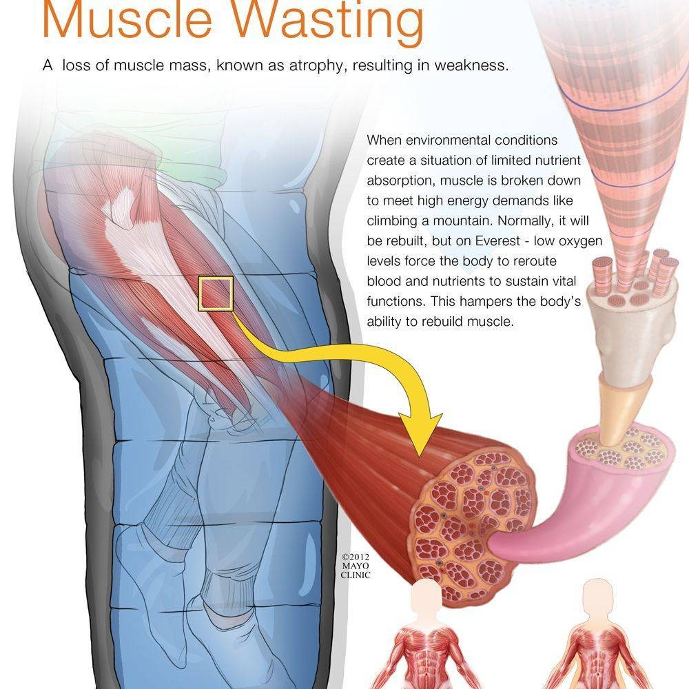 muscle wasting, wasting of the muscle