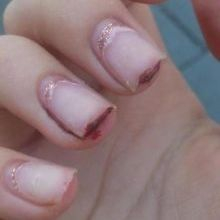 Broken nails whilst wearing MMA acrylic nails