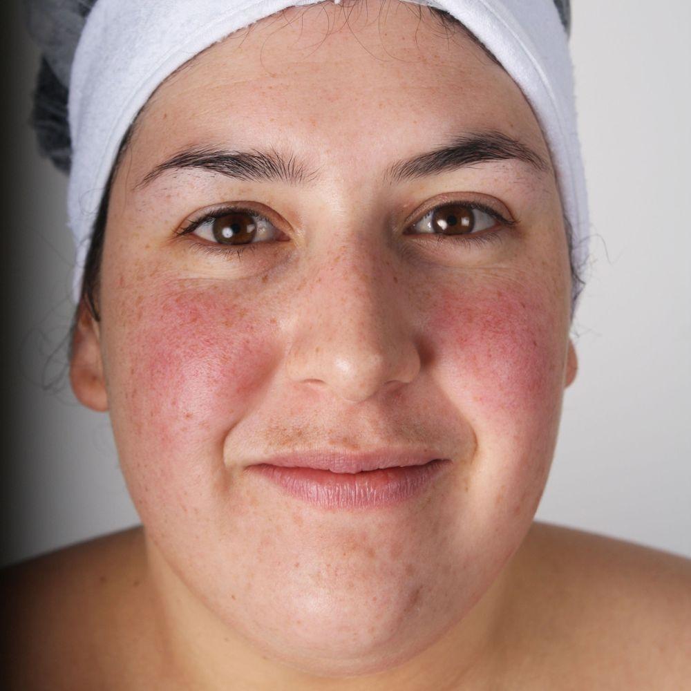 sensitive skin, eczema, rosacea, redness, dry skin