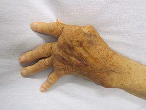 Rheumatoid arthritis Rochester NY