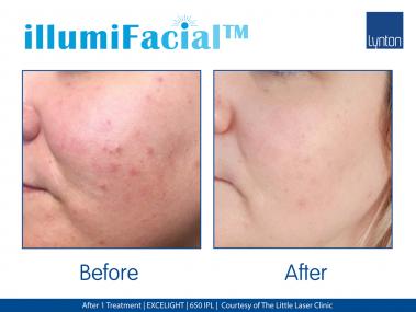 illumifacial, Lynton, Laser, laser skin treatments, acne treatment, pigmentation treatment, skin clinic, skin clinic stone, collagen induction, skin rejuvenation