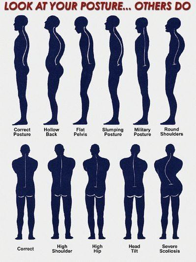 Diagram of 12 correct and incorrect posture positions