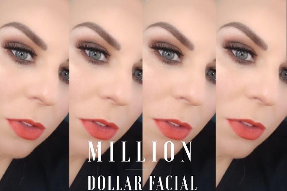 Million Dollar Facial, Micro needling, skin needling, dermaplane