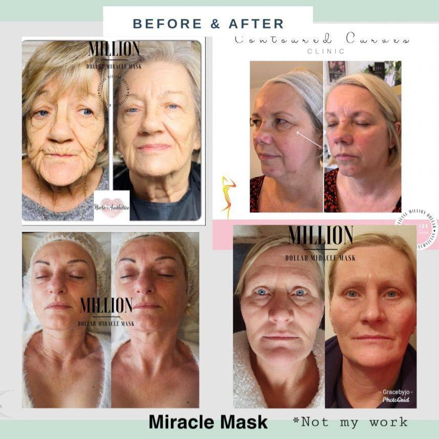 Million Dollar Miracle Mask, Red carpet treatments, facial