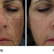 Sciton, BBL, Laser Skin Care, Laser Treatment, Med Spa