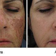 Sciton, BBL, Laser Skin Care, Laser Treatment, Med Spa