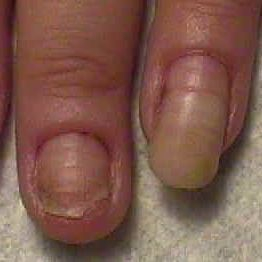 After wearing MMA acrylic nails