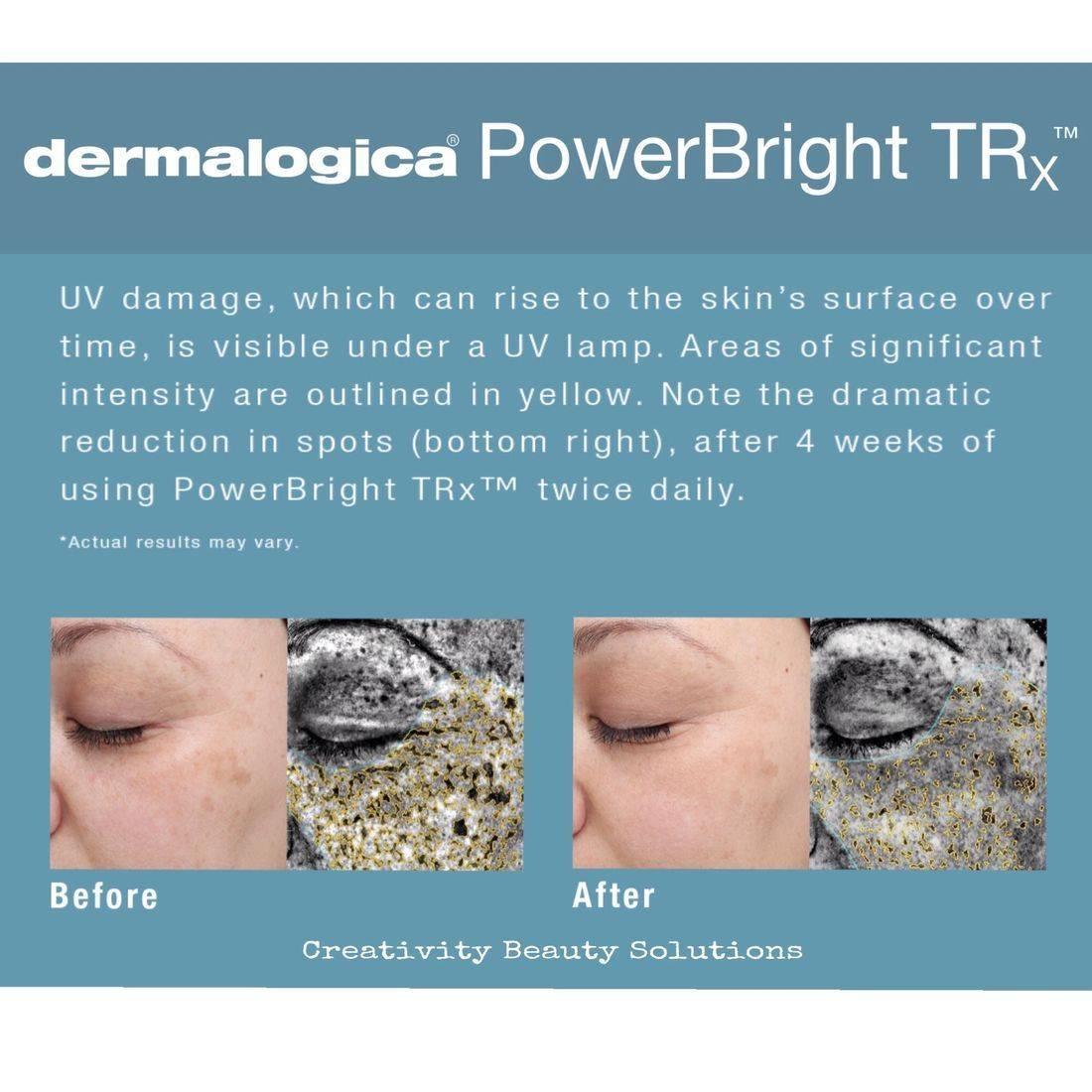 Hyperpigmentation  UV spots age spots  Creativity beauty solutions Reading