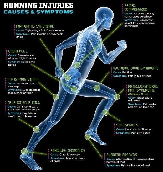 running injuries, knee pain, gait analysis, shin pain when running, plantar fascitis, hip pain when running