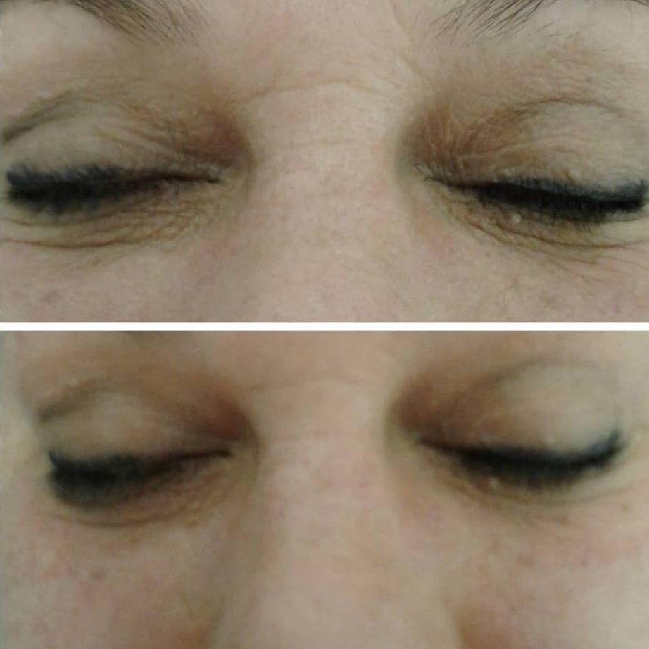 noninvasive eye lift, tight eyes, eye cream, instant results eyes, face lift