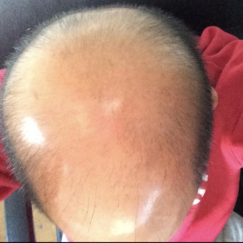 balding, hairline, thinning hair, alopecia,  camouflage, hair transplant, Tacoma, Washington