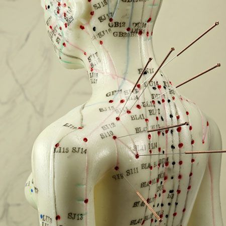 acupuncture, WHO, anxiety, depression, PMS, needles, bodytx