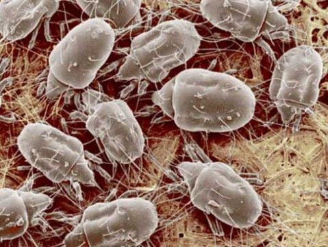 Dust mite allergy, house dust mites, dust mites